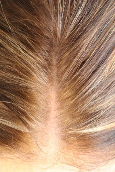 Hair Restoration with Exosomes Gallery - Patient 39167685 - Image 6