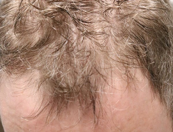 Hair Restoration with Exosomes Gallery - Patient 49275868 - Image 3