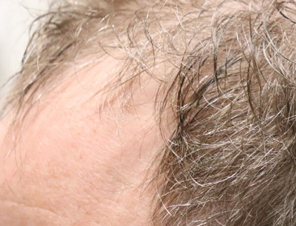 Hair Restoration with Exosomes Gallery - Patient 49275868 - Image 5