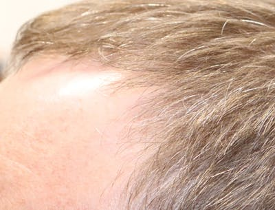Hair Restoration with Exosomes Gallery - Patient 49275868 - Image 6