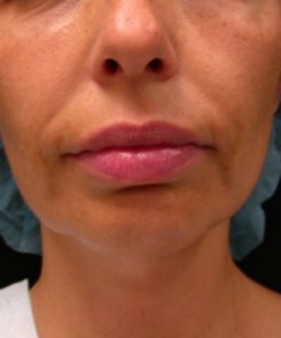 Facial Rejuvenation Gallery - Patient 5930054 - Image 1