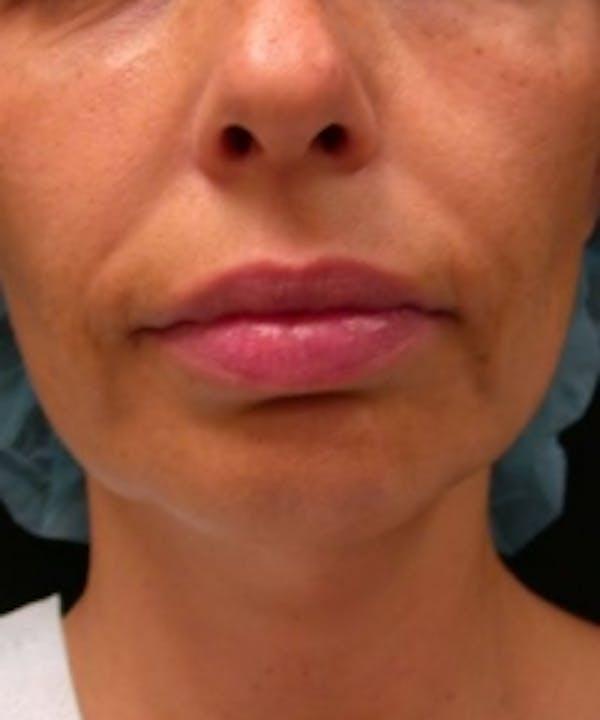Facial Rejuvenation Gallery - Patient 5930054 - Image 1