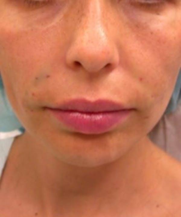Facial Rejuvenation Gallery - Patient 5930054 - Image 2