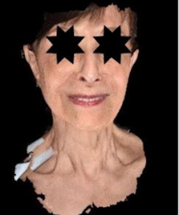 Facial Rejuvenation Gallery - Patient 5930055 - Image 1