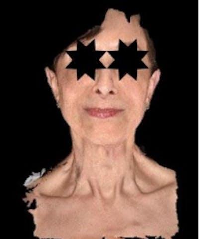 Facial Rejuvenation Gallery - Patient 5930055 - Image 2