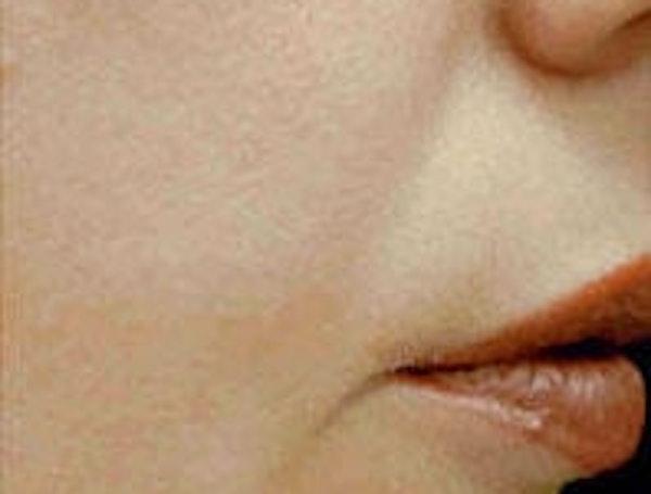 Facial Rejuvenation Gallery - Patient 5930056 - Image 2