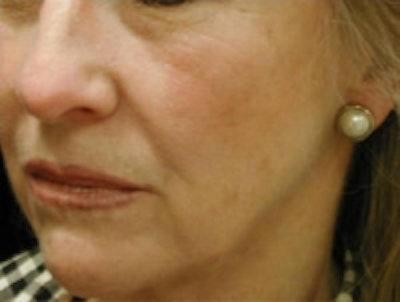 Facial Rejuvenation Gallery - Patient 5930057 - Image 1