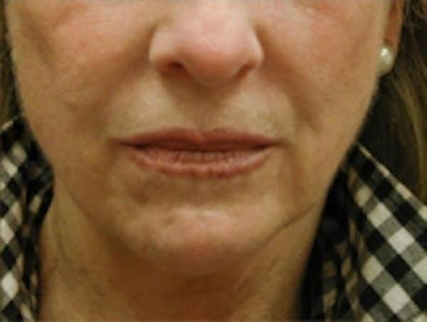 Facial Rejuvenation Gallery - Patient 5930057 - Image 3