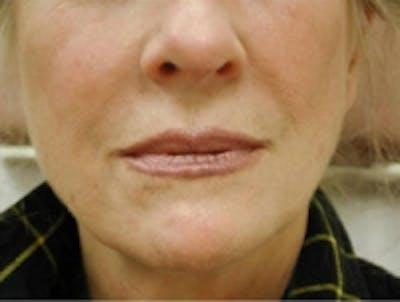 Facial Rejuvenation Gallery - Patient 5930057 - Image 4