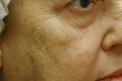 Facial Rejuvenation Gallery - Patient 5930058 - Image 1