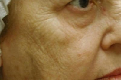 Facial Rejuvenation Gallery - Patient 5930058 - Image 1