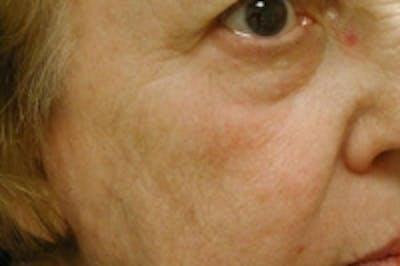 Facial Rejuvenation Gallery - Patient 5930058 - Image 2