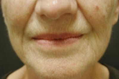 Facial Rejuvenation Gallery - Patient 5930059 - Image 1