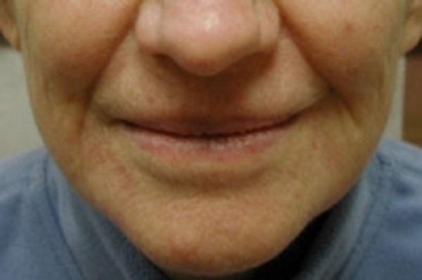 Facial Rejuvenation Gallery - Patient 5930059 - Image 2
