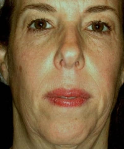 Facial Rejuvenation Gallery - Patient 5930060 - Image 1
