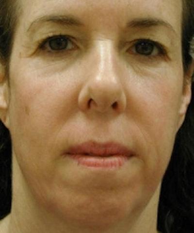 Facial Rejuvenation Gallery - Patient 5930060 - Image 2