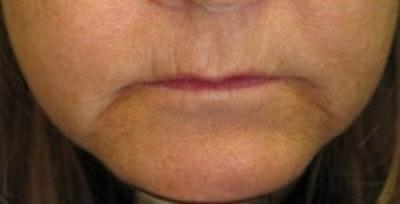 Facial Rejuvenation Gallery - Patient 5930061 - Image 1