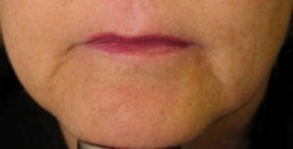 Facial Rejuvenation Gallery - Patient 5930061 - Image 2