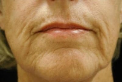 Facial Rejuvenation Gallery - Patient 5930062 - Image 1