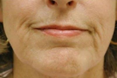 Facial Rejuvenation Gallery - Patient 5930062 - Image 2