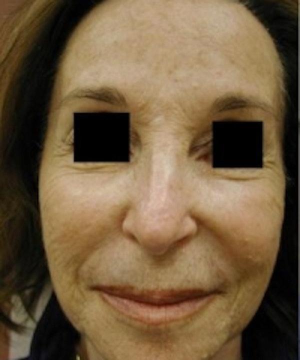 Facial Rejuvenation Gallery - Patient 5930063 - Image 1