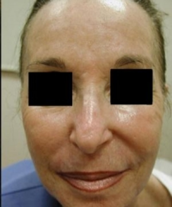 Facial Rejuvenation Gallery - Patient 5930063 - Image 2