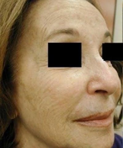 Facial Rejuvenation Gallery - Patient 5930064 - Image 11