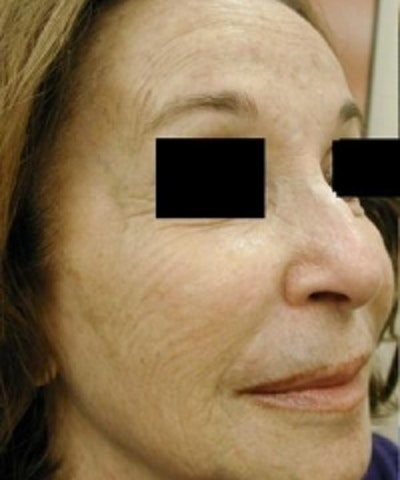 Facial Rejuvenation Gallery - Patient 5930064 - Image 1
