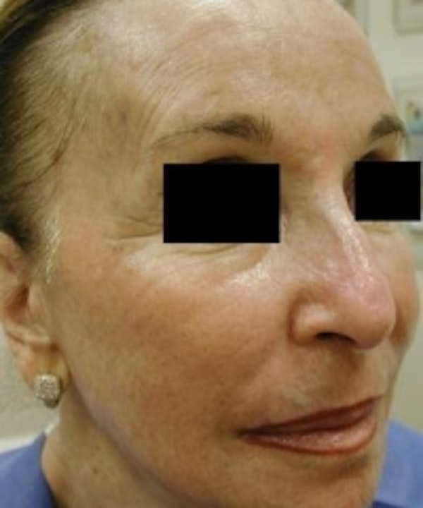 Facial Rejuvenation Gallery - Patient 5930064 - Image 2