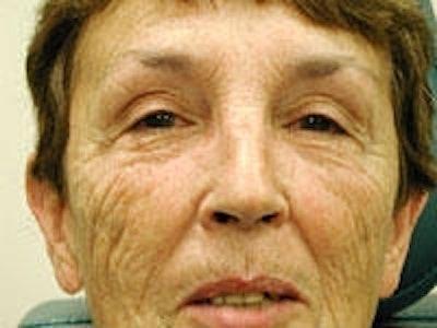 Facial Rejuvenation Gallery - Patient 5930065 - Image 1