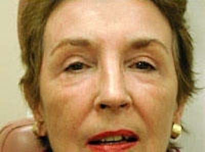 Facial Rejuvenation Gallery - Patient 5930065 - Image 2