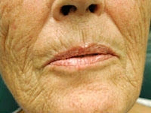 Facial Rejuvenation Gallery - Patient 5930065 - Image 3