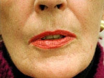 Facial Rejuvenation Gallery - Patient 5930065 - Image 4