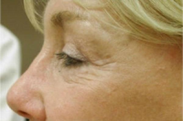 Facial Rejuvenation Gallery - Patient 5930066 - Image 1