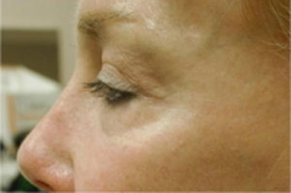 Facial Rejuvenation Gallery - Patient 5930066 - Image 2