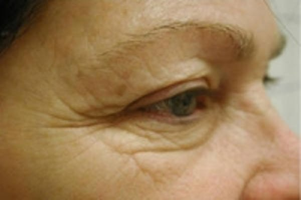 Facial Rejuvenation Gallery - Patient 5930067 - Image 1