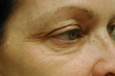 Facial Rejuvenation Gallery - Patient 5930067 - Image 2