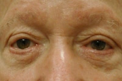 Facial Rejuvenation Gallery - Patient 5930069 - Image 15