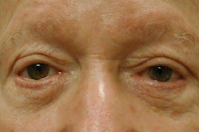 Facial Rejuvenation Gallery - Patient 5930069 - Image 15