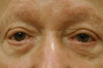 Facial Rejuvenation Gallery - Patient 5930069 - Image 1