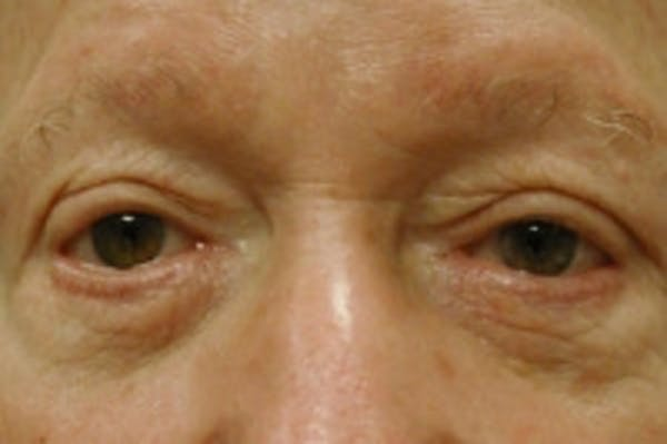 Facial Rejuvenation Gallery - Patient 5930069 - Image 1