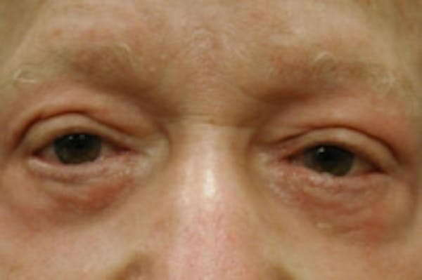 Facial Rejuvenation Gallery - Patient 5930069 - Image 2