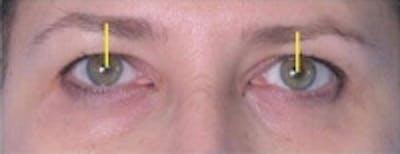 Facial Rejuvenation Gallery - Patient 5930070 - Image 16
