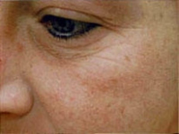 Facial Rejuvenation Gallery - Patient 5930071 - Image 1