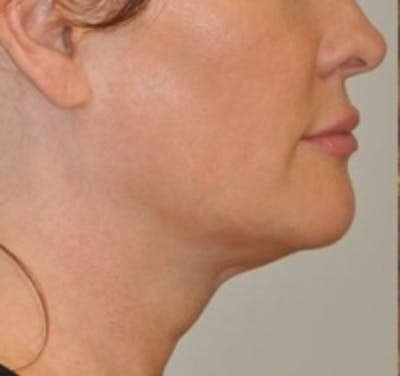 Neck Rejuvenation Gallery - Patient 5930084 - Image 1