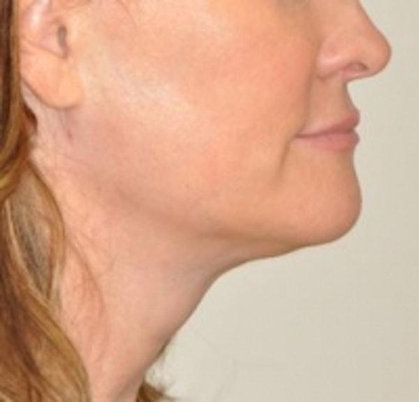 Neck Rejuvenation Gallery - Patient 5930084 - Image 2