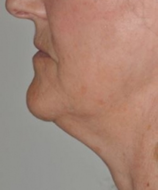 Neck Rejuvenation Gallery - Patient 5930086 - Image 1
