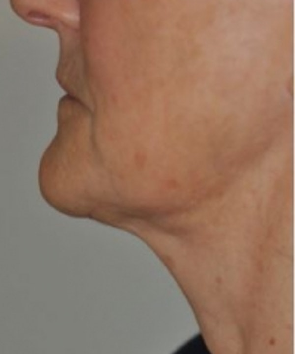 Neck Rejuvenation Gallery - Patient 5930086 - Image 2