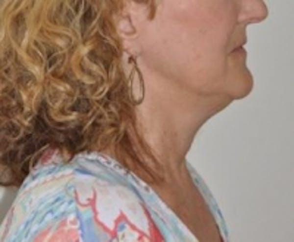 Neck Rejuvenation Gallery - Patient 5930087 - Image 1