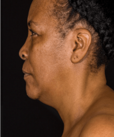 Neck Rejuvenation Gallery - Patient 5930088 - Image 4
